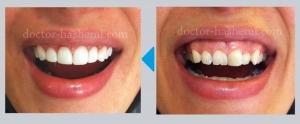 زیبایی لثه - لمینت دندان