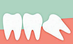 wisdom_tooth