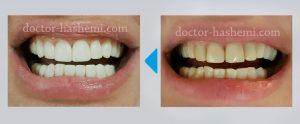 لامینت دندان