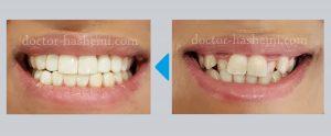 لمینیت دندان